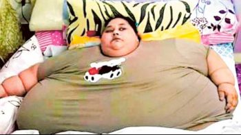 World's heaviest woman to defy all odds for life-changing surgery