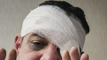Etisalat driver loses eye in attack by 3 brothers