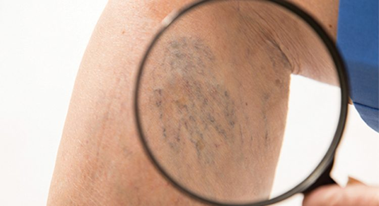 Why varicose veins are dangerous to your health